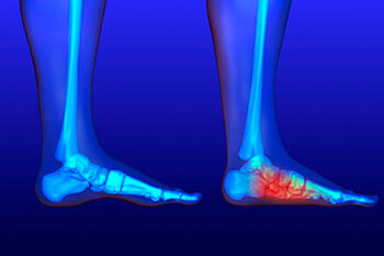 Flat Feet Treatment in Wheeling, IL 60090 and Chicago, IL 60613