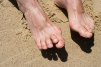 What Causes Hammertoes?