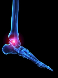 Signs of Rheumatoid Arthritis in the Feet